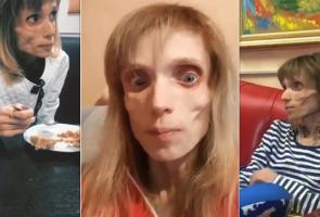 Derita Anoreksia, Berat Wanita Rusia Ini Hanya 17 Kg