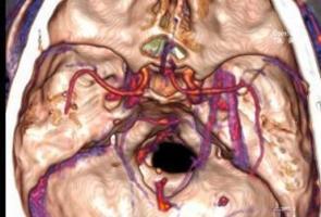 Sering Sakit Kepala, Ternyata Ada Pecahan Kayu Dalam Otak Pria Ini