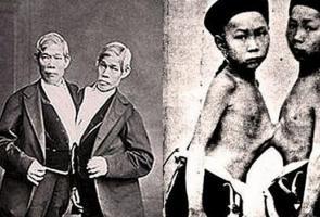 Istilah Kembar Siam Muncul Dari 2 Pria Kembar Asal Thailand Ini