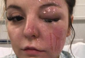 Wajah Wanita Ini Kena Ledakan Saat Buat Telur Dengan Microwave